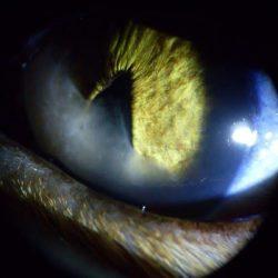galeria_oftalmología (6)